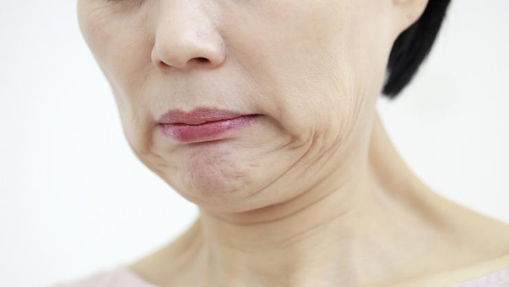 인형 턱 분절 닮은 '마리오네트 주름'...안면거상술로 개선 가능
